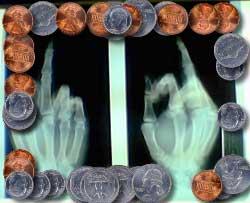 finger-ok.jpg